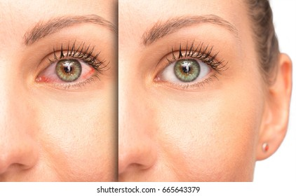 Before and after a glaucoma, red eye with and without medical treatment