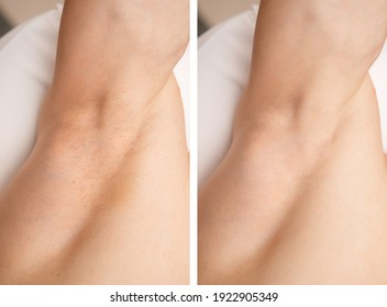 Before and after hair removal procedure from men armpit, laser epilation studio.