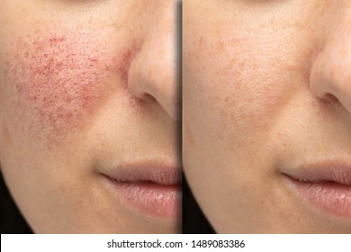 Before and after laser treatment for rosacea, couperose. Successful intervention