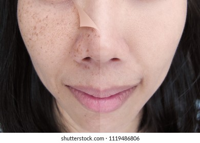 Before and After Laser/Retouch Freckles on Young Asian Woman Face