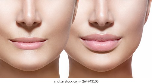 Before and after lip filler injections. Fillers. Lip augmentation Beautiful Perfect Lips. Sexy Mouth close up. Beauty young woman Lips. Close up over white background
