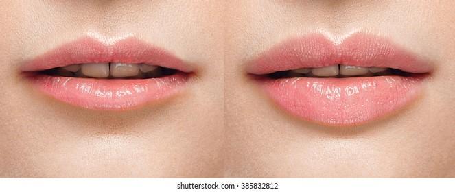 Imágenes, fotos de stock y vectores sobre Plumping Lips