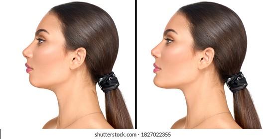 Vor und nach einer plastischen Chirurgie des Kindes. Einzeln auf weißem Hintergrund