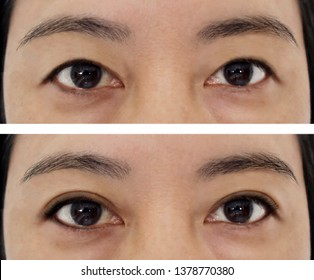 Before and after plastic surgery concept. Double eyelid on asian woman.