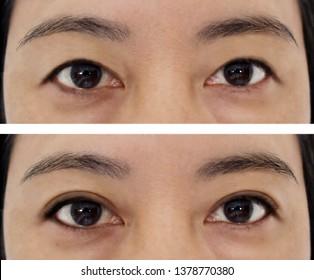 Upper Eyelid Images, Stock Photos & Vectors | Shutterstock