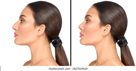 Before and after plastic surgery of nose. Rhinoplasty. Crooked nose correcting. Young woman profile portrait, isolated on white background. Beauty female, model girl face close-up. Aesthetic medicine