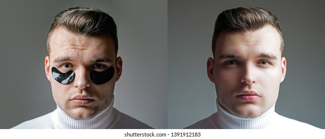 Before and after result. Minimizes puffiness and reduce dark circles. Eye patches for men. Man with black eye patches close up. Metrosexual concept. Focused treatments for under eye area. Skin care.