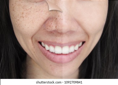 Before and After Retouch Freckles on Young Asian Woman Face