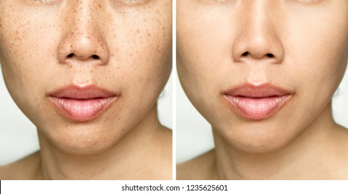 Before and After Retouch Laser Freckles on Young Asian Woman Face