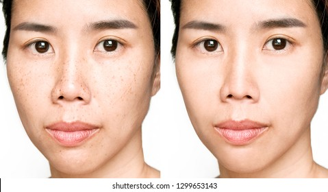 Before and After Retouch Laser Freckles on Asian Woman Face