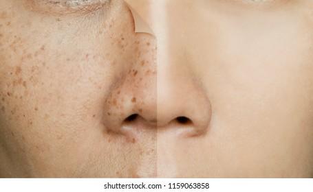 Dark Spot Images, Stock Photos & Vectors | Shutterstock