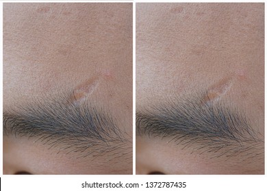 Before & After Scar Treatment.