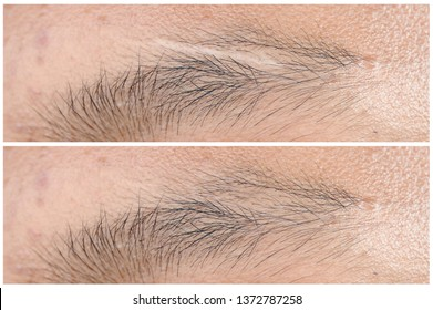 Before & After Scar Treatment.Scar on eyebrow young man close eyes,The concept of severe experience.