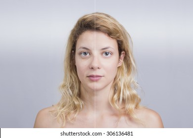 Before and after skin treatment of a blonde woman