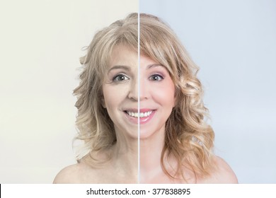 Before and after skin treatment transformation of a blonde woman