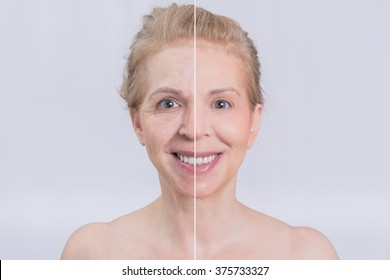 Before and after skin treatments woman