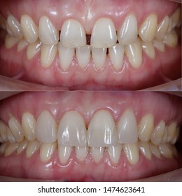 before and after of tooth filling for diastema closure by direct composite technique