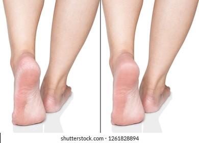 Hard Skin On Feet Images, Stock Photos