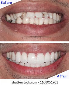 Before & after treatment with new smile by dentist