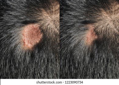 Before - after treatment Scars on the head, hair loss.Picture on white background