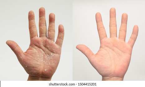Before and after the treatment of skin diseases. Psoriasis on the palm. Compare.
