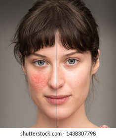A before and after view of a beautiful young Caucasian girl suffering with rosacea. Portrait view showing results of successful laser surgery.