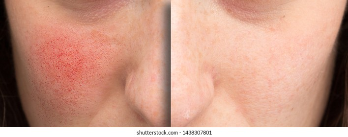 A before and after view of rosacea treatment. Young Caucasian woman shows results of laser surgery to the cheek and face to remove superficial dilated blood vessels.