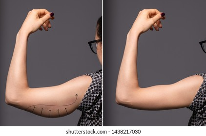A before and after view of a successful brachioplasty procedure. An untoned arm is seen on the left before plastic surgery, and a toned arm is seen on the right after the operation.