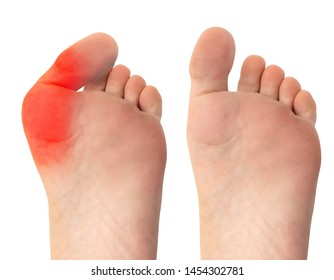 A before and after view of successful surgery to remove a severe bunion from the foot of a Caucasian person. Image on the left shows severely deformed big toe. Isolated against a white background.