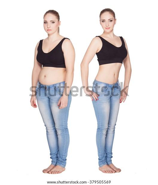 Zahnagenese vor und nach Gewichtsverlust