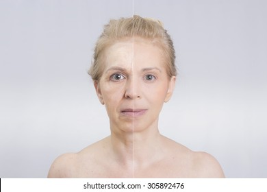 Before and after woman in a surgery or a skin treatment