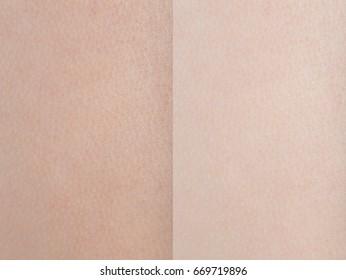 Before and After woman texture skin for skin lightening , bleaching skin, Lighten skin cream