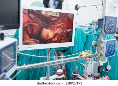 behind monitor at heart bypass machine station