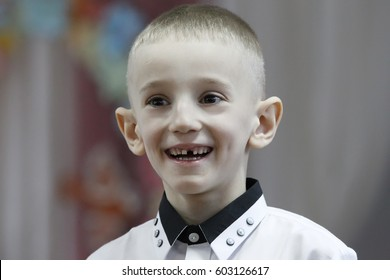 Belarus. City Gomel.28.02.2017. Kindergarten, a public holiday dedicated to women's day. The boy, without a tooth, is smiling at the festival.A child without a tooth. Lop-eared boy.