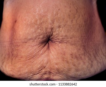 Belly after giving birth, stretchmarks, belly button scar, wrinkle, pigmentation, pregnancy pouch and a dark line down their abdomen. Concept, edit for beauty.