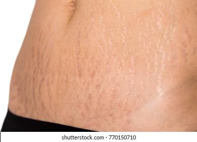 Belly Pattern fat stomach woman