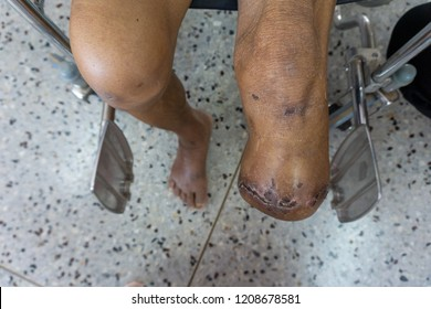 below knee amputation, close up left stump of diabetes patient with post amputee operation