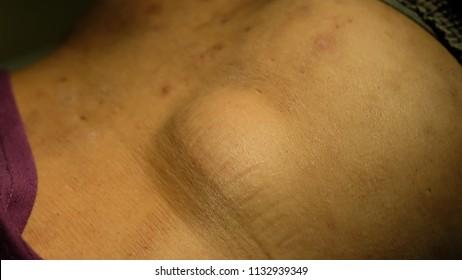 Benign lesion of subcutaneous tissue, Lipoma