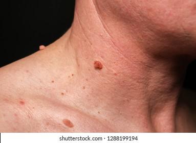 Big birthmark on the man's skin. Medical health photo. Papillomas on the neck.