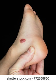 Big blood blister next to ankle of young person isolated towards black with copy space
