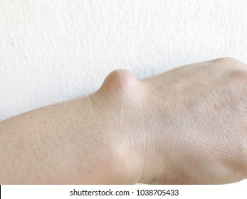 Big ganglion cyst (fluid filled lump associated with a joint, a tumor or swelling on top of a joint or the covering of a tendon) back of wrist on the right hand of woman on white background