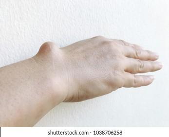 Snímky, stock fotografie a vektory na téma Hand Tendons