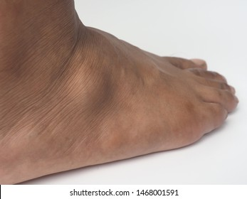 Big ganglion cysts,a sac of jellylike fluid,is on the right foot of man put on the white background.