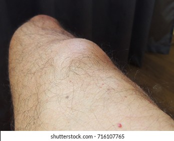 Big lipoma on the leg of a middle aged man