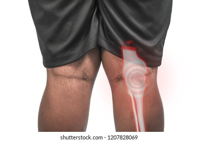 Big man and knee pain.