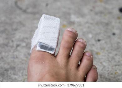 Broken Toe Images, Stock Photos & Vectors | Shutterstock