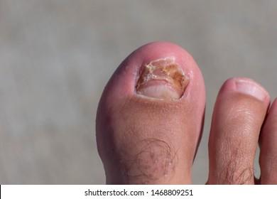 Fotos, imágenes y otros productos fotográficos de stock sobre Nails