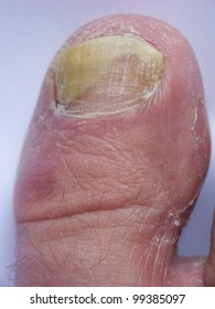 Big toe with nail infection