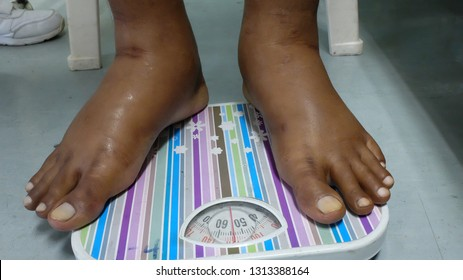 Bilateral lower limb oedema on weight measuring scale.