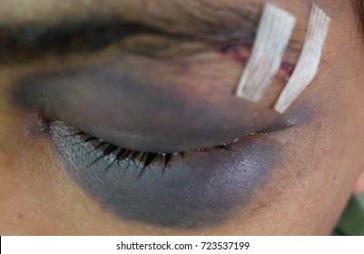 Black Eye or Racoon Eye Periorbital Hematoma secondary to Basal Skull Fracture.